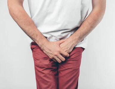 Białe lub czerwone krostki na penisie – co mogą oznaczać