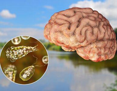 Ta ameba żywi się... ludzkim mózgiem. Zmarł 7-latek zakażony podczas...