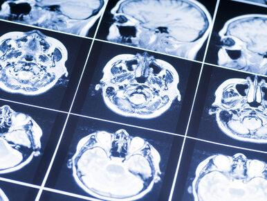 Dobre informacje dla chorych na stwardnienie rozsiane. Te leki znajdą...