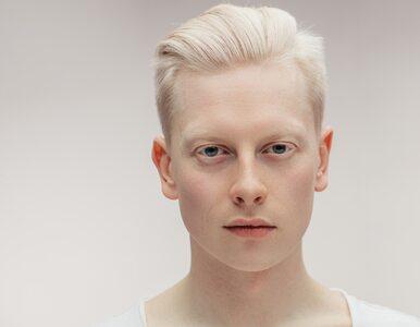 """Albinos, czyli kto? Człowiek """"magiczny"""", prześladowany ze względu na..."""
