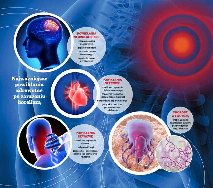 Najważniejsze powikłania zdrowotne pozarażeniu boreliozą -infografika