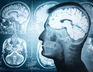 Proste badanie moczu może wykrywać guzy mózgu? Rewolucyjne odkrycie...