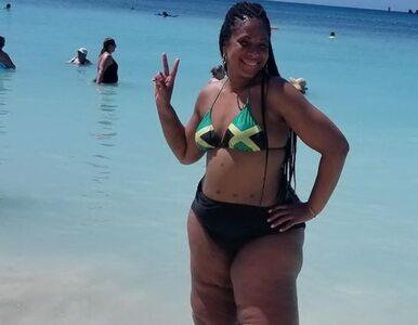 """35-letnia Amerykanka z """"chorobą grubych nóg"""": Nauczyłam się z tym żyć"""
