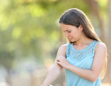 Jak radzić sobie z łuszczycą latem? O tych rzeczach nie zapominaj
