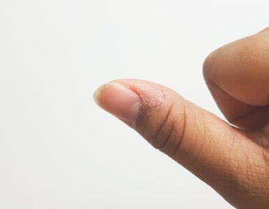 Zanokcica – bolesne zapalenie pod wałem paznokcia. Jak je wyleczyć...