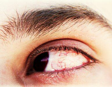 Co ma wspólnego cukrzyca ze zdrowiem oczu? Okazuje się, że bardzo wiele