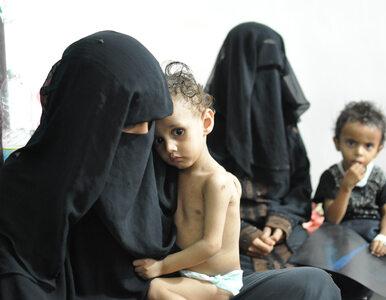 """Jemeńczycy mają smutek w oczach. """"Zapomniana wojna w zapomnianym kraju"""""""