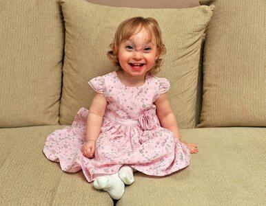 Urodziła się z mózgiem na zewnątrz czaszki, lekarze dawali jej 20 minut...