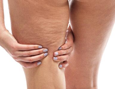 Cztery stadia cellulitu. Na którym etapie jest twoja pomarańczowa skórka?