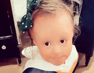 Skóra tego dziecka rośnie 10 razy szybciej niż innych ludzi. Dziewczynka...