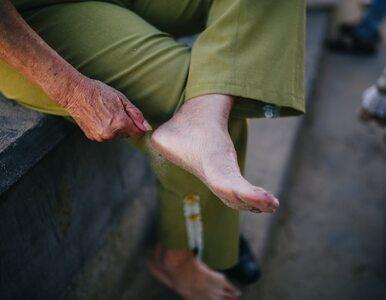 Covidowe palce to jeden z objawów zarażenia koronawirusem. Jak wyglądają?