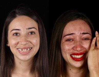 Dentysta leczy zęby ubogich ludzi. Tak wyglądają ich metamorfozy