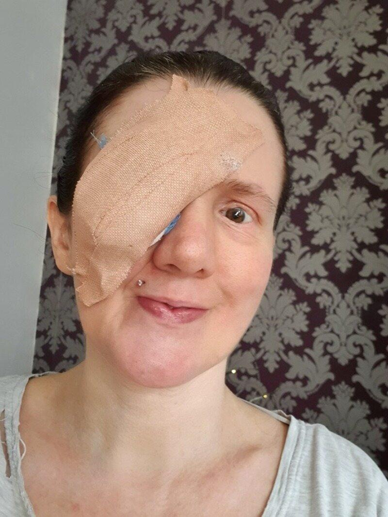Claire Willis po amputacji oka