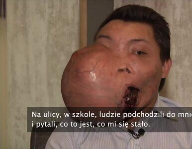 23-latek ma na twarzy guza ważącego 5 kg. Od dziecka zmaga się z poważną...
