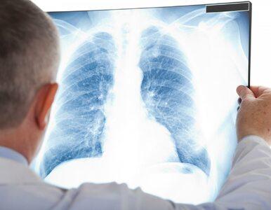 12 sygnałów, które mogą świadczyć o chorobie płuc. Jak to rozpoznać?