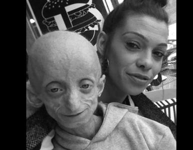 """Zmarła 18-latka cierpiąca na """"chorobę Benjamina Buttona"""". Czym jest..."""