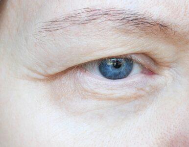 Sposoby na opadającą powiekę: Kremy, ćwiczenia, zabiegi estetyczne