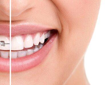 Aparat ortodontyczny – aktualne ceny, rodzaje, trendy. Jaki aparat wybrać?