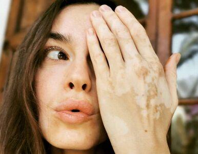Kasia Smutniak choruje na bielactwo. Opublikowała osobisty wpis i zdjęcia