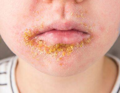 Liszajec – bardzo zakaźna choroba skóry dzieci i dorosłych