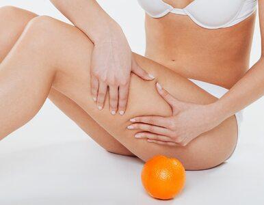 Cellulit to defekt kosmetyczny czy oznaka poważniejszej choroby?