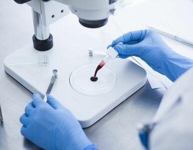 Epidemia HIV w rosyjskim mieście. Nosicieli wirusa jest więcej, niż w...