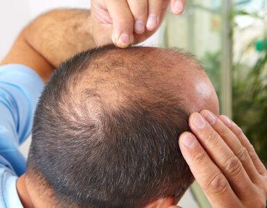 Czy łysienie jest związane z koronawirusem? Nowe doniesienia z USA