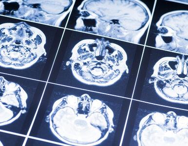 Zidentyfikowano komórkowe pochodzenie guzów mózgu u dzieci