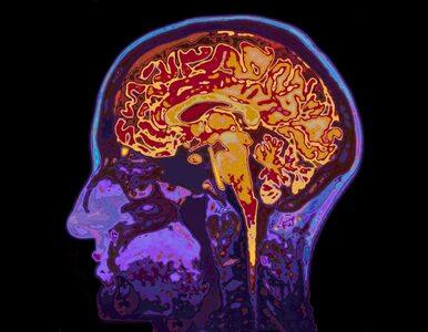 Wiemy, co jeść, by zachować zdrowie mózgu