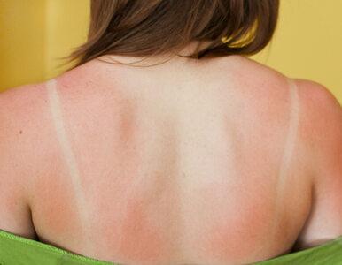 Domowe sposoby na poparzenia słoneczne