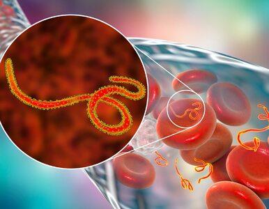 Arenawirusy  – najgroźniejsze wirusy świata, które wywołują 3 straszne...