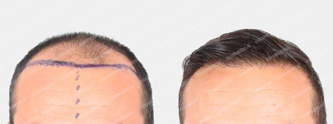 Przeszczep włosów – porównanie przed ipo