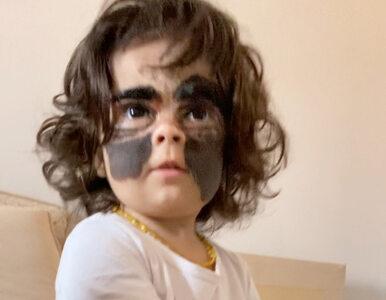 """Dziewczynka ma na twarzy nietypowe znamię. """"Mówią, że to maska Batmana"""""""