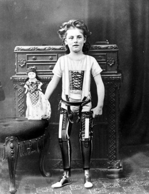 Dziewczynka z protezami nóg (1900 r.), fot. epicdash.com