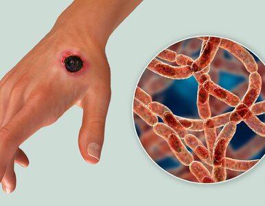Wąglik to bakteria, która była stosowana jako broń biologiczna. Czy dziś...