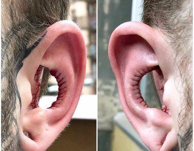 Usunął sporą część małżowiny usznej. To nowy trend w modyfikacjach ciała?
