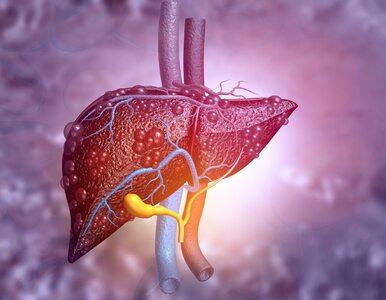 Onkolog: O raku wątroby mówi się mało, bo jego przyczyna jest wstydliwa