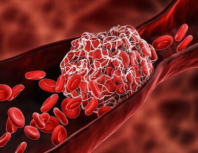 Podawanie leków zakrzepowych zmniejsza ryzyko zgonu w COVID-19