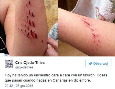 Rekin zaatakował turystkę na Gran Canarii