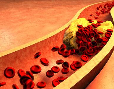 Czy wysoki poziom cholesterolu daje jakieś objawy?