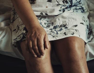 Te nawyki osłabiają twoje kości i stawy. Numer 2 szczególnie zaskakuje