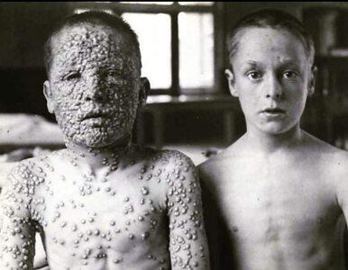 Nie wierzysz w skuteczność szczepień? Spójrz na zdjęcie, które...