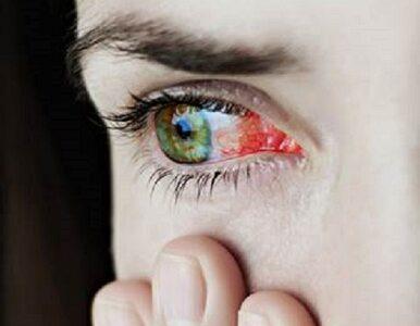 Nieleczone zapalenie błony naczyniowej oka prowadzi do utraty wzroku