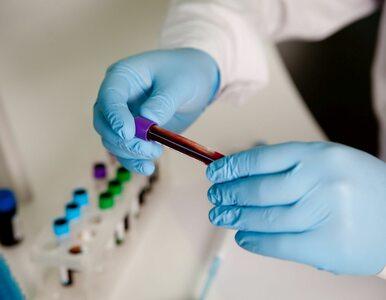 Codziennie czterech Polaków dowiaduje się, że są nosicielami wirusa HIV