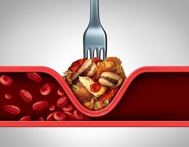 Zbyt wysoki poziom cholesterolu pomaga rozwijać się nowotworom. Nowe...