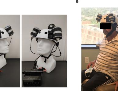 Nowa metoda leczenia glejaka mózgu. Jak działa... kask onkomagnetyczny?