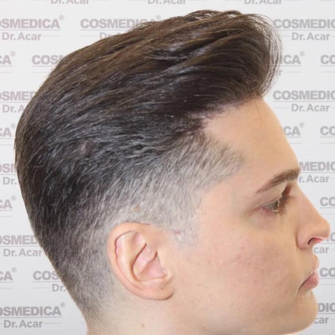 Naturalne rezultaty poprzeszczepie włosów