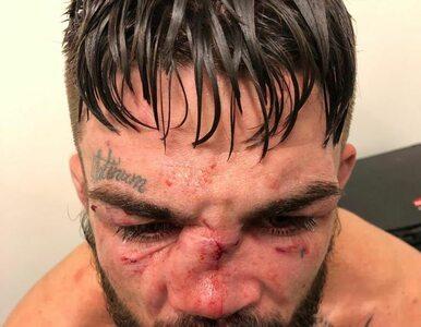 Zawodnik MMA odniósł bolesną kontuzję. Uwaga, zdjęcie jest drastyczne