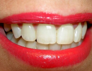 Polacy chętnie wybielają zęby