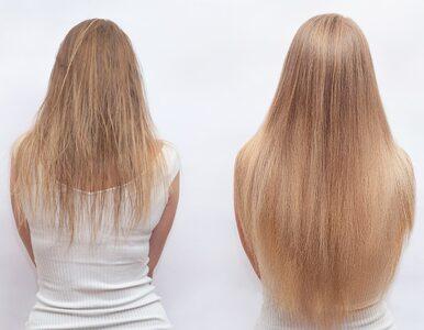 Otyłość szkodzi nawet naszym... włosom! Mogą wypadać całymi garściami